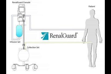 טכנולוגיה חדשה למניעת נזק כלייתי
